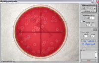 Software for counting bacteria conlonies (CFU) on a Petri dish